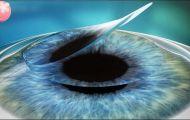 Mổ cận thị có đau không và các phương pháp mổ cận thị hiện nay